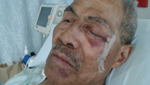 Elderly man suffers nasty gash to face, refused an ambulance