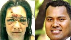 The photo on the left is of Jess Setu after she had received medical treatment following the bashing by Lealofi Setu.