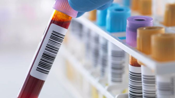 Blood tests showed signs of prostate cancer for more than a year before the patient was told. (Photo \ File)