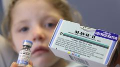 Mumps is turning into a national epidemic. (Photo / NZ Herald)
