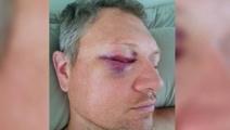 Sucker-punch victim: Blow 'pretty much ruined my life'