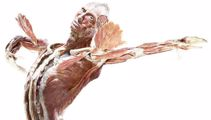 Body Worlds exhibition opens in Auckland