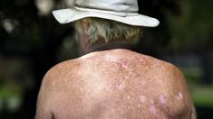 New Zealand ranked highest in the world for skin cancer