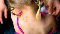 Hundreds declined specialist skin care