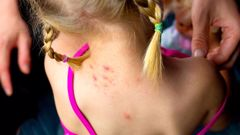 Around half of children in South Auckland are declined a specialist appointment for serious skin conditions. Photo / File