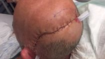 Caller of the week: Call for more CCTV following brutal attack