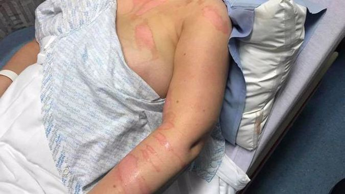 Injuries suffered by a nurse who allegedly had boiling water thrown over her. Photo / Facebook