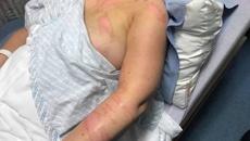 Nurse scalded by patient had escape route blocked