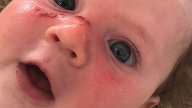 Noah - four months old - suffers horrific blister burns after Cancer Society 50 SPF sunblock fails to protect him from NZ's harsh rays. Photo / Supplied
