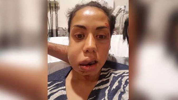 Raven Torea's face was badly swollen after the attack. (Photo / Supplied)
