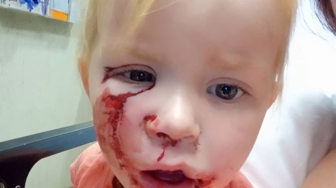 Amelia-Jayne Morphus​ was attacked by the dog when she went to pat it outside her house. Photo / Supplied.