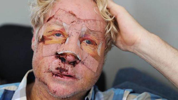 Dodgy concrete causes cyclist's damaging face plant