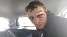 Hitch-hiker brutally bashed, robbed in back of stranger's car