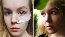 Dutch teen died after failed euthanasia request, officials state