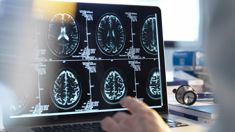 Michelle Dickinson: New study explores why women are more affected by Alzheimer's than men
