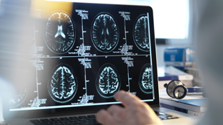Study explores why Alzheimer's affects women more than men