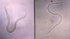 Professor Graham Le Gros: Hookworms could have huge potential for health