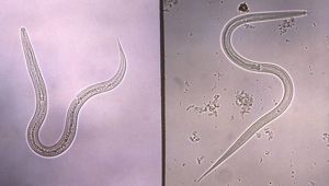 hookworm therapy could help millions