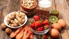 Brett McGregor: Dealing with food allergies over Christmas