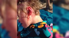 Nine-year-old Christiana Holt was taken to hospital after a dog attacked her on Eastern Beach. Photo / Supplied