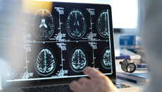 Dr Malvindar Singh-Bains: What you need to know to keep your brain healthy