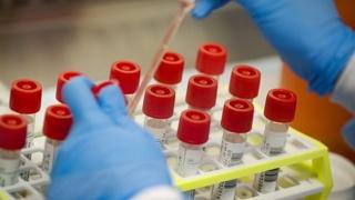 Australia passes milestone with clutch of new cases