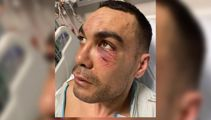 Police arrest puts tagger in hospital, angry bystanders claim brutality