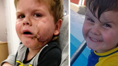 Hastings dog attack leaves Christchurch boy with life-changing injuries