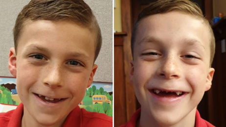 Christchurch mum faces huge bill to fix son's missing front teeth
