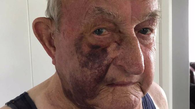 81-year-old brutally bashed in Wellington road rage incident