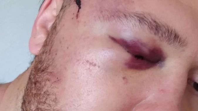 The woman's son suffered a swollen black eye and bleeding iris in the attack,which put him in hospital. Photo / Supplied