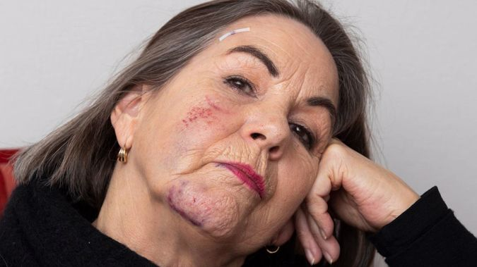 Debra Christensen with head injuries after a Lime scooter crash knocked her out in June 2019. Photo / Brett Phibbs