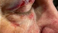 The man suffered a serious eye injury during the alleged assault on Sunday night. (Photo / Gabi Wildbore)